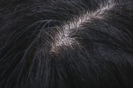 ホホバオイルは頭皮に使える