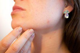 大人ニキビ予防には生活習慣の見直しが必須!【おすすめ洗顔料&スキンケア15選】